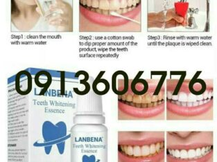 lanbena teeth whitening