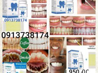 Lanbena teeth whiteing